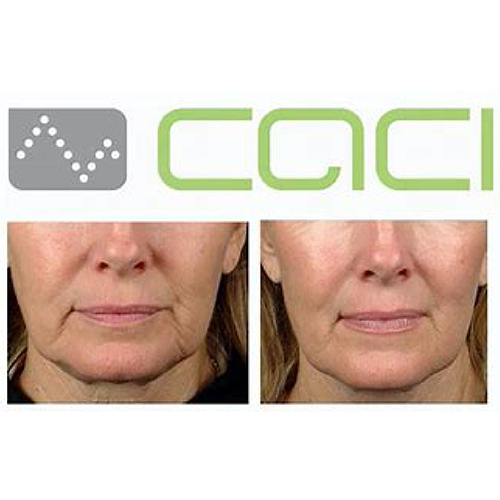 CACI-Jowl-Lift-Before-&-After
