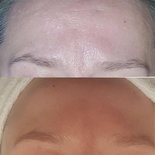 Bio-Peel-Before-&-After